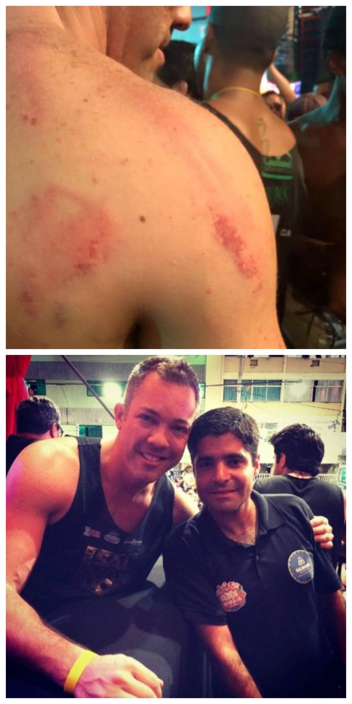 As costas de Leandro, no alto, marcadas pela violência; acima, ele com o prefeito Antônio Carlos Magalhães Neto, antes de acontecer o incidente / Fotos: reprodução da internet