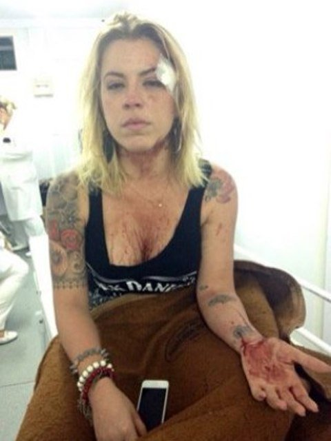 A produtora Carolina Mandin, depois da agressão sofrida na madrugada de sexta-feira / Foto: O Dia