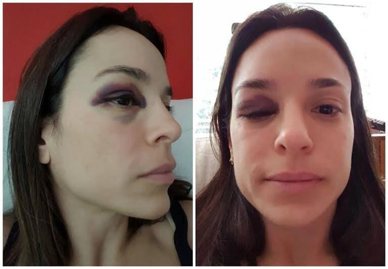 Karina Granella: jornalista é a prova de que jamais se pode reagir aos assaltos de bicicleta, cada vez mais raros, desde a Operação Verão