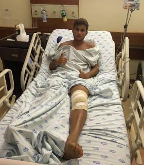 """Felipe Barcellos:  atleta caiu sobre uma pedra enorme na praia de Copacabana; empresas promovem eventos na areia e """"esquecem"""" de limpar a área"""