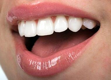 As facetas de porcelana, os dentes encapados, no popular, viraram mania entre os cariocas / Foto: reprodução
