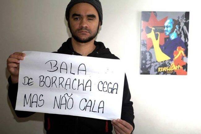 Sérgio Silva: fotógrafo perdeu a visão esquerda em confronto /Foto: Reprodução Facebook
